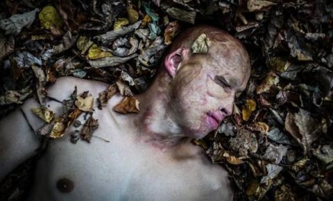 'Renasci das cinzas': a incrível história de Lyosha, o menino que o pai atirou em um forno aceso